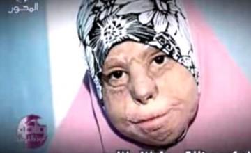 الحالات الانسانية مع د عمرو الليثي27-9-2012