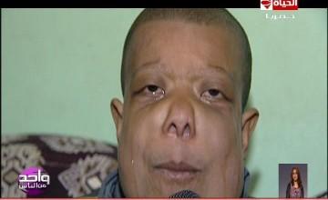 واحد من الناس الحالات الانسانية الطفل عيد محمد